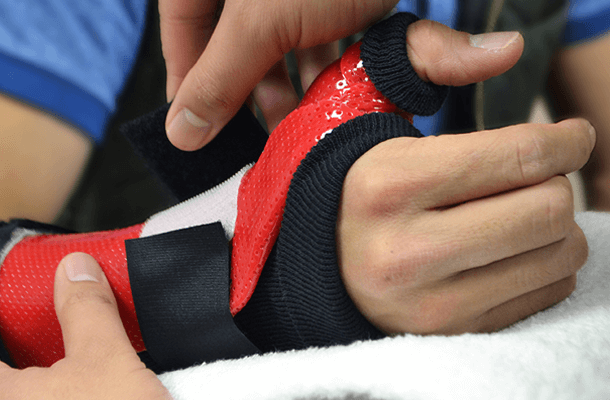 custom hand splints for hand injuries