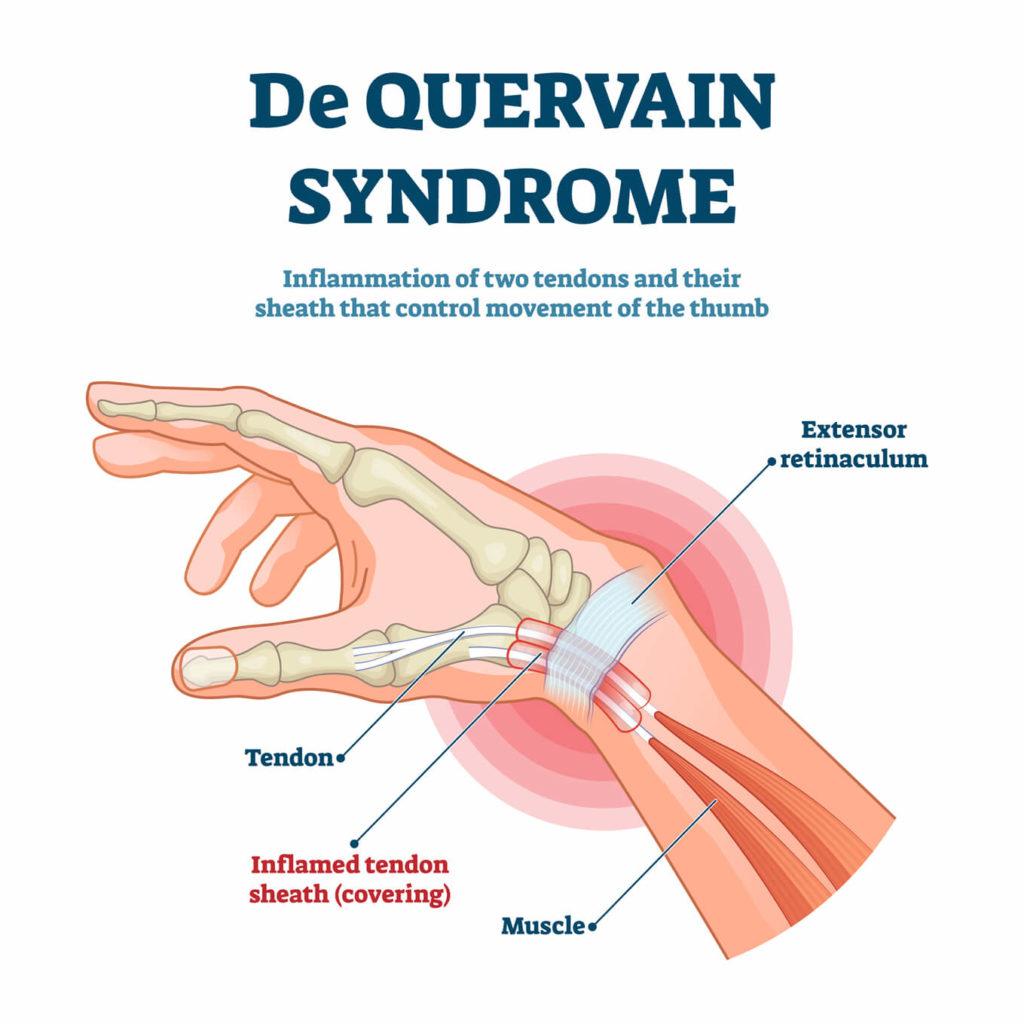 anatomy of De Quervain's syndrome
