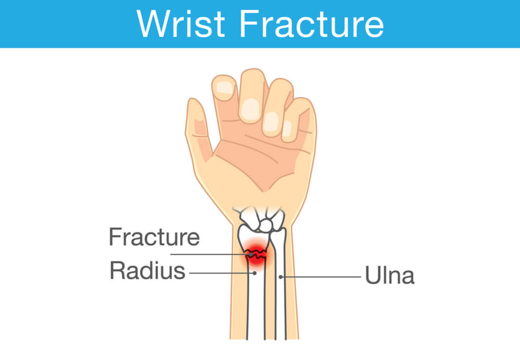 anatomy of a wrist fracture