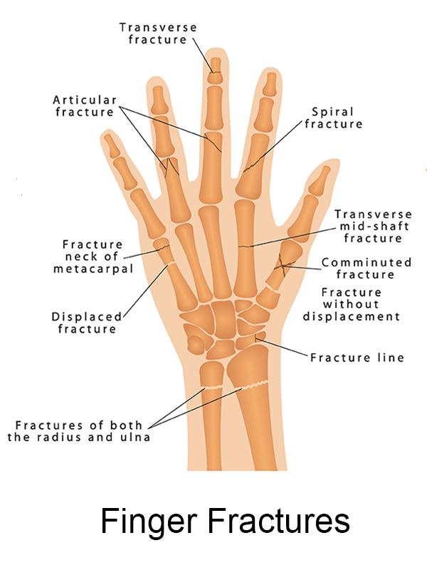 anatomy of finger fractures