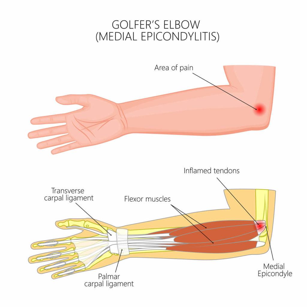 anatomy of golfer's elbow