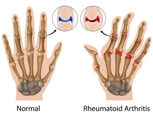 representation of the difference between normal hand joints and hand joints that have rheumatoid arthritis