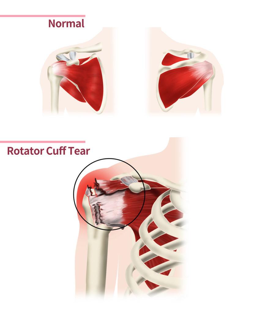Diagram of a rotator cuff tear