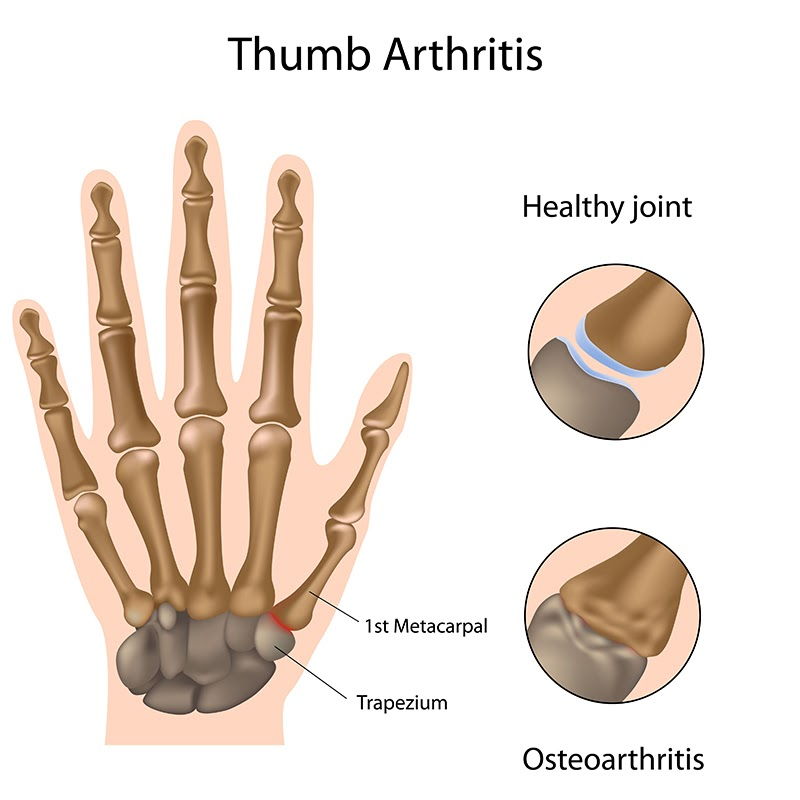 anatomy of thumb arthritis